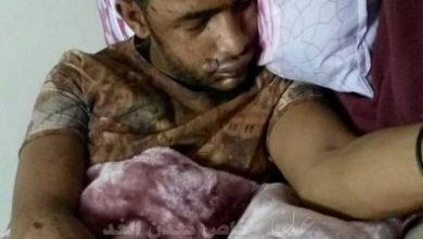 Photo of عدن .. قوة أمنية تختطف جريح من إحدى المشافي
