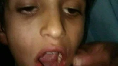 Photo of وفاة طفل في ذمار بعد تعرضه لعضة كلب وعدم قدرة أسرته على توفير قيمة اللقاح