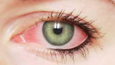Photo of علامة خطيرة جداً اذا ظهرت عليك في العين فانت مصاب بهذا المرض الخطير