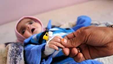 Photo of اليابان تقدم 5 ملايين دولار منحة طارئة للاستجابة التغذوية في اليمن